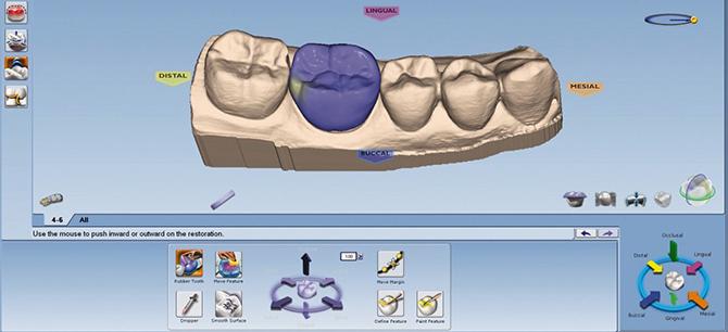 Программу для 3d моделирования зубов