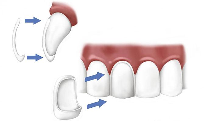 Виниры в СПб стоматология